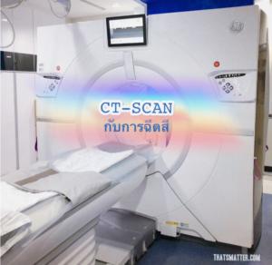 ฉีดสี ct scan
