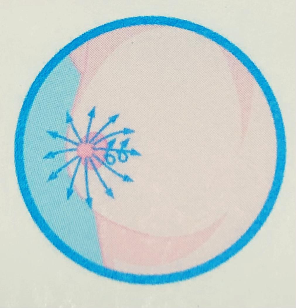 มะเร็งเต้านม ตรวจเต้านมด้วยตนเอง การคลำในแนวรูปลิ่ม (wedge)