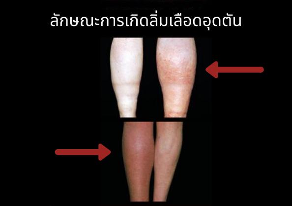 วัคซีนโควิด-19 ลิ่มเลือดอุดตันในเส้นเลือดดำ
